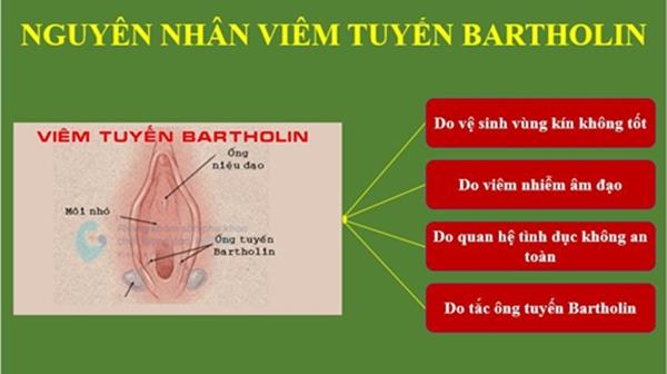 Nang tuyến Baetholin tại Nghệ An