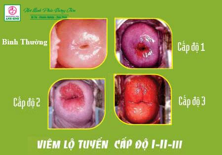 Điều trị viêm lộ tuyến cổ tử cung tại Nghệ An