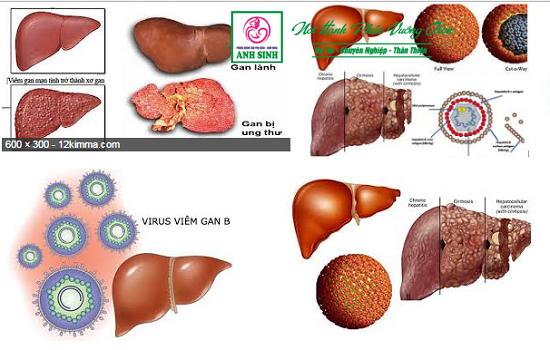 Huyết thanh viêm gan B