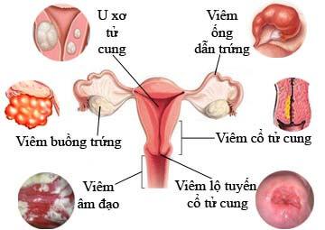 Siêu âm phụ khoa tại Vinh, Nghệ An