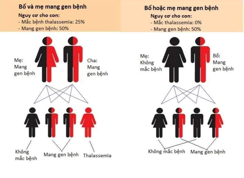 Xét nghiệm bệnh tan máu bẩm sinh tại Nghệ An