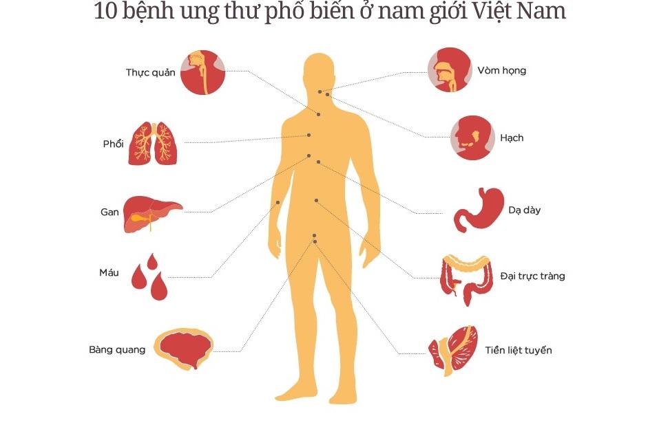 Tầm soát ung thư ở Nghệ An
