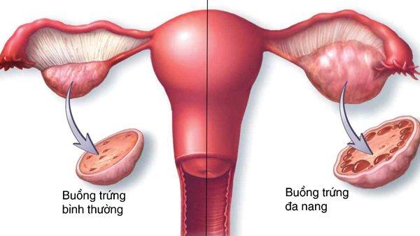 điều trị vô sinh nữ tại Vinh